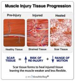 muscle injuries picture 9