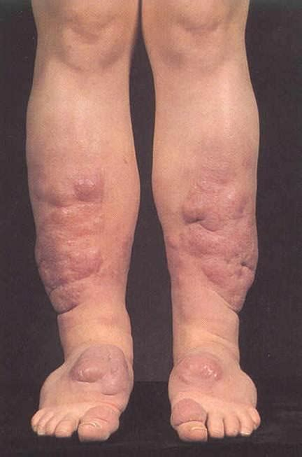 acne graves disease picture 7