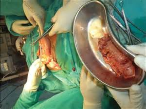 intestine rupture after bladder removal picture 3