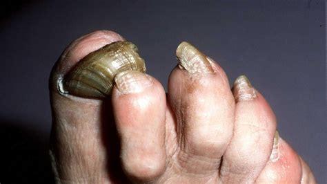 fungus toenails picture 2
