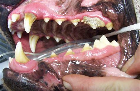 coke teeth picture 2