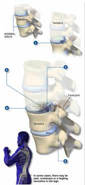 cream for degenerative spine disease picture 11