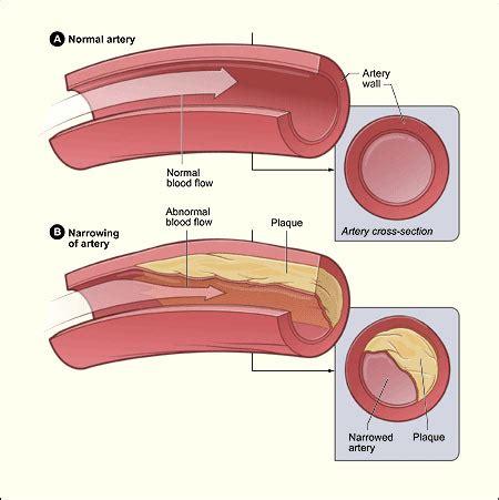 low blood pressure brain aneurysm picture 14
