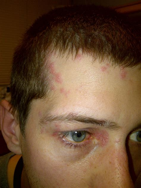 herpes zoster ophthalmicus com picture 6