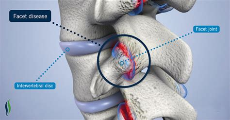 facet joint hypertrophy picture 2