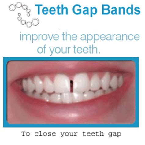 average price to close gaps in teeth picture 1