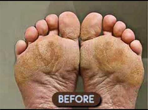 foot exfoliator picture 2