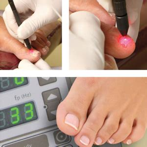 pinpoint +footlaser picture 2