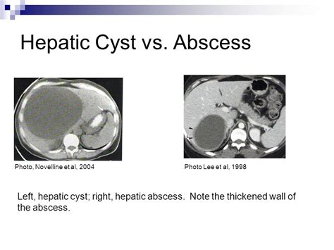 what is an active liver cyst picture 15
