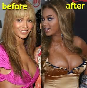 breast augmentation surgery picture 2