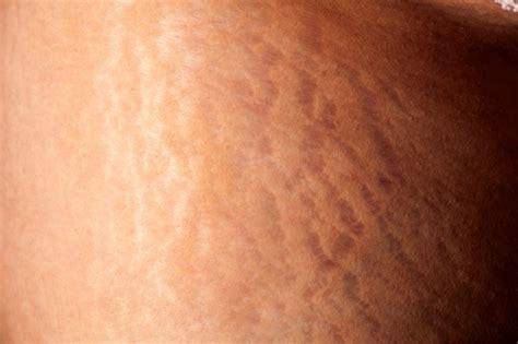 does dermazan skin eraser remove stretch marks picture 10