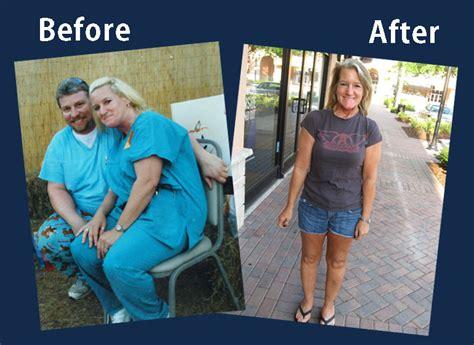 jill weight loss flex picture 1