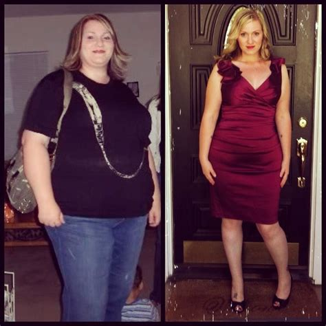 weight loss operation picture 11