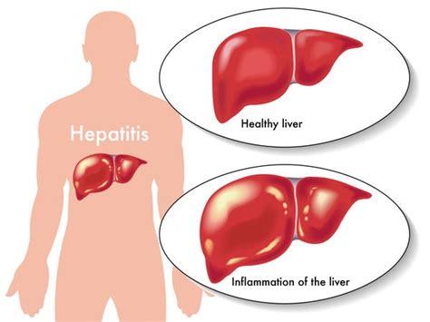 acute liver failure life expectancy picture 14