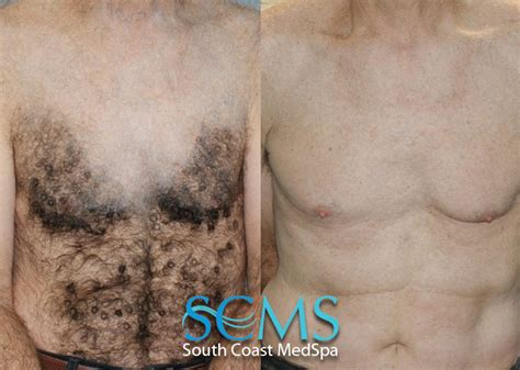 chest waxing acne picture 6