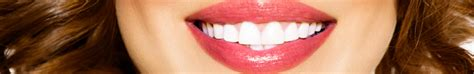 tooth whitening san francisco picture 5