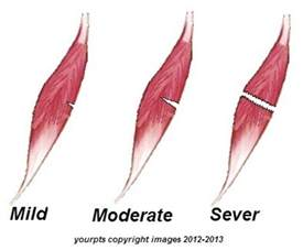 acute muscle tear picture 1