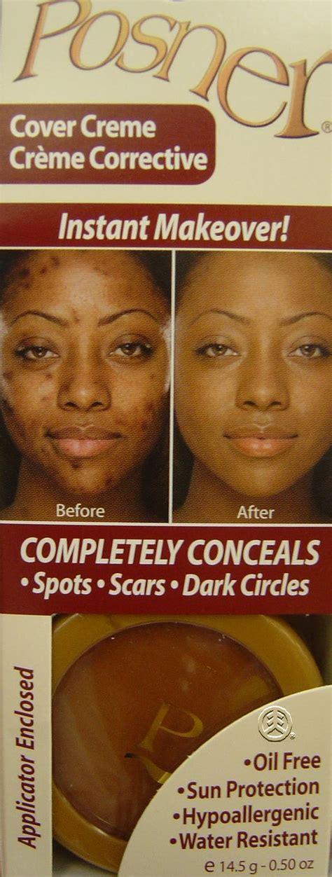 cremes to darken white scars picture 13