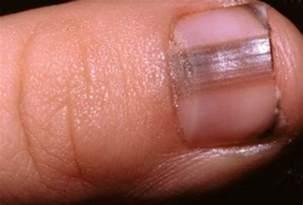 econazole nitrate cream + nail fungus picture 2