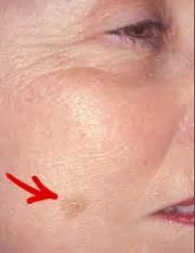 what does liver spots look like picture 18