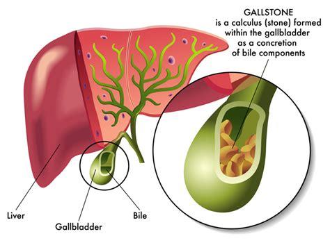 gall bladder & diverticulitis picture 6