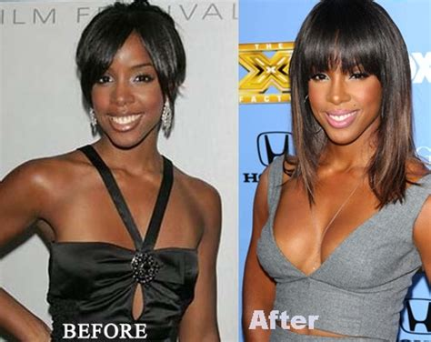 breast enhancement 400cc picture 9