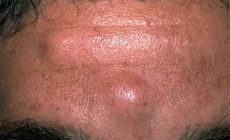 cancer and head acne picture 3