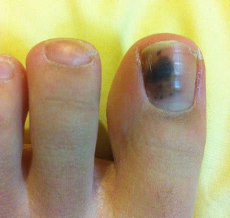 toenail fungus under nail black picture 7