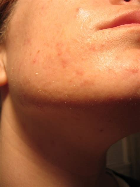 how long for tazorac to work for acne picture 2