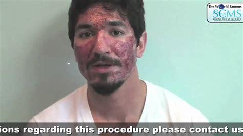 Remove acne scars picture 15