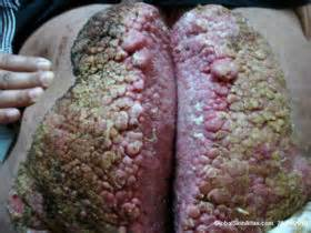 picture genital warts picture 7