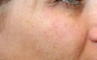milia skin picture 7