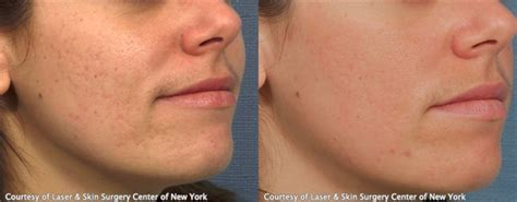 acne scar treatments in houston picture 15
