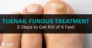 do certain vitamines help cure nail fungus picture 5