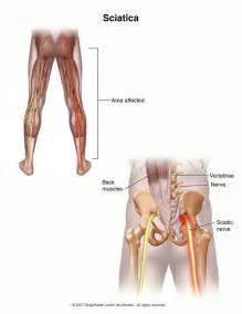 sciatica picture 2