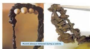Colonix vs. bowtrol picture 2