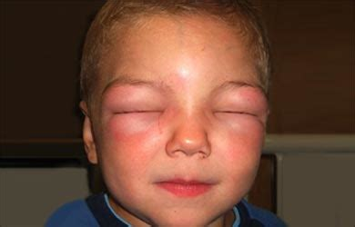 allergic reaction skin rashes picture 13