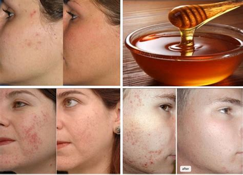 food cures for acne picture 6