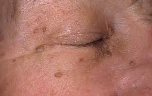 genital skin problems picture 1