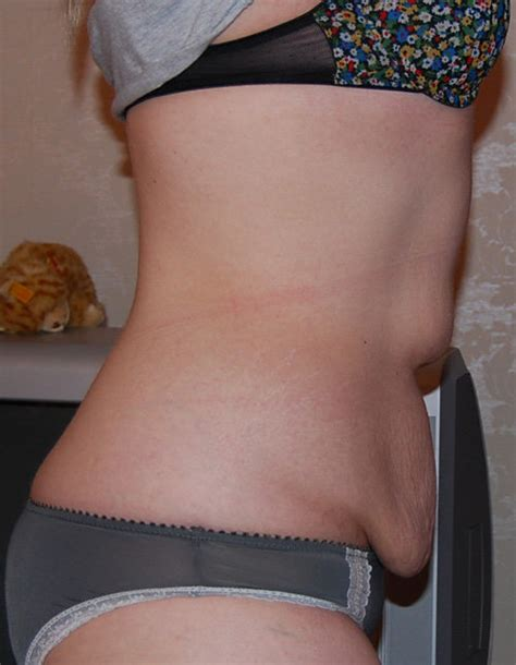 sagging stomach skin picture 3
