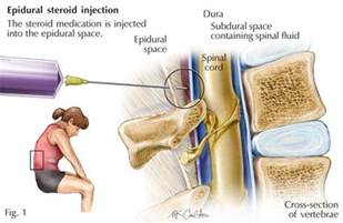 epidural steroid injection side effects libido picture 5