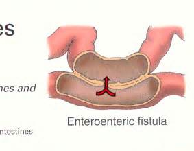bladder fistula in women that connects to colon picture 5