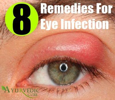 chinese herb for eye infection picture 1