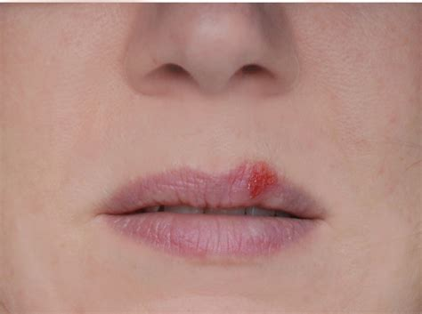 about herpes picture 7