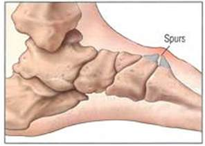 knee joint bone spurs growth time picture 14