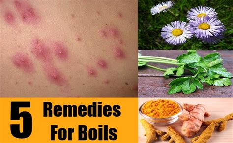 remedy for boils picture 10