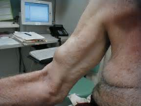 muscle tendon tears picture 17