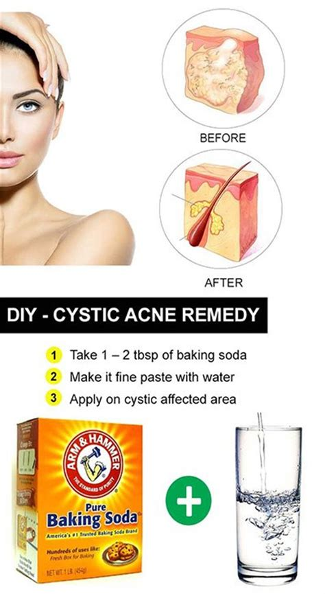 cystic acne causes picture 13