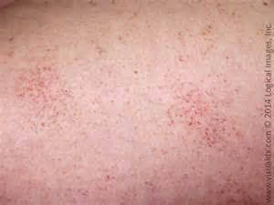 tiny red skin dots picture 9