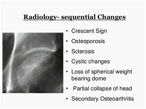 bone loss in h picture 5